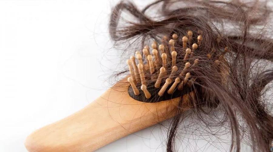 ۵ بیماری پنهان را از ظاهر موهایتان تشخیص دهید