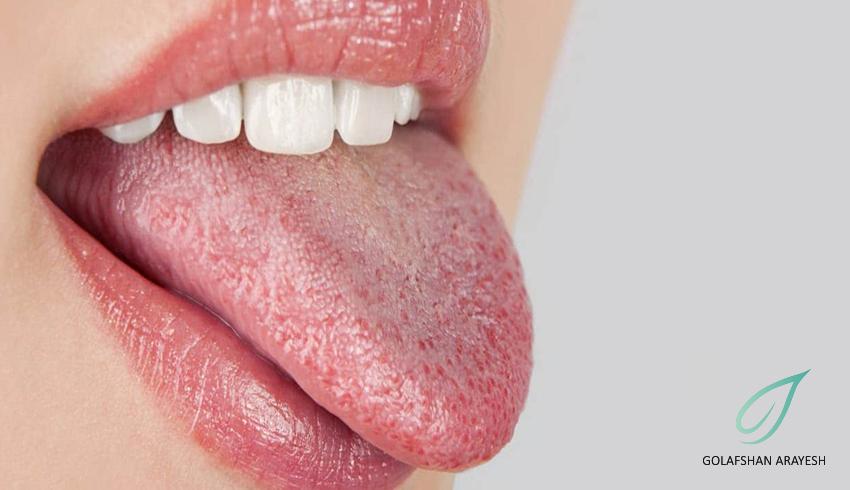 علت خشکی دهان و گلو