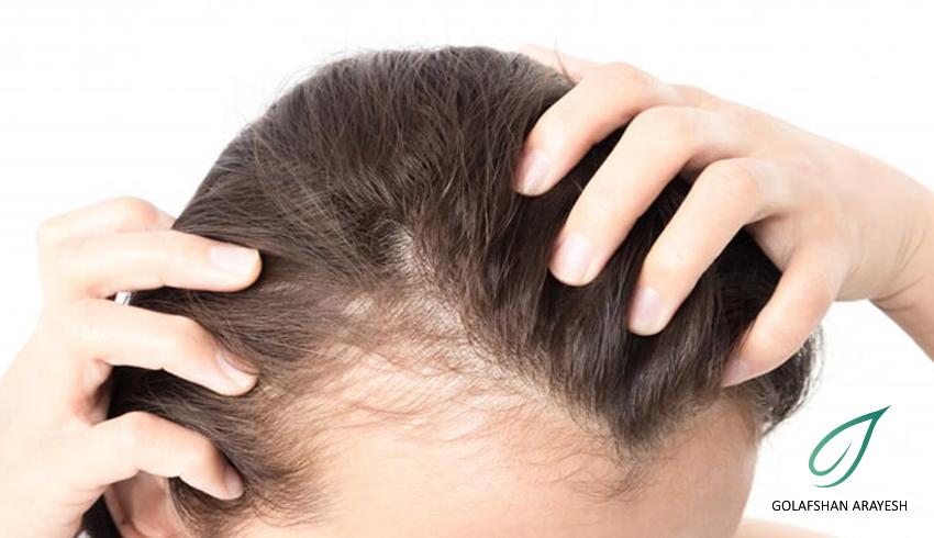 ریزش مو و عوارض کرونا